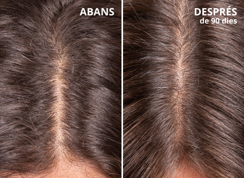 abans despres hair growth