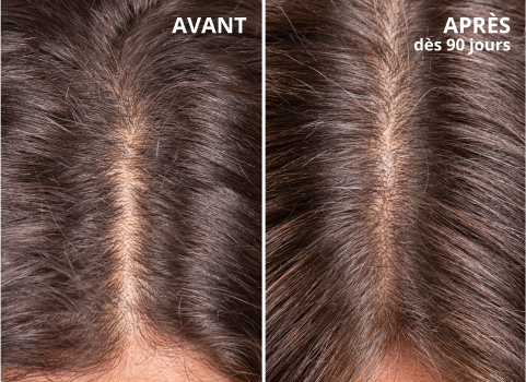 avant après Hair Growth