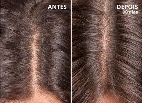 ciclo del capello