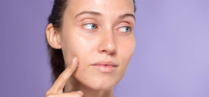 Descubre cómo tratar y prevenir el maskne de forma natural