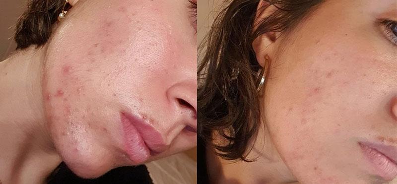 Resultado real: antes y después de utilizar el oil serum y el sérum facial exfoliante enzimático de Freshly
